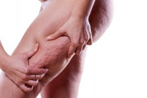 Doctor administering treatment for cellulite