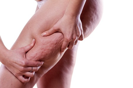 Beyond skin tightening: Is ThermiTight RF technology good for cellulite?