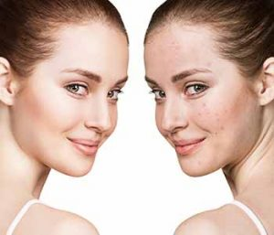 At Image Dermatology, acne treatment is never one-size-fits-all.