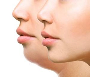 Provides Kybella Double Chin Treatment in Montclair NJ area