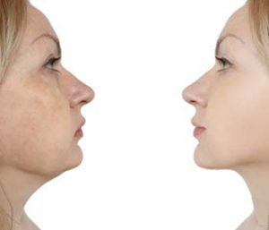 Is Kybella Right for Me in Montclair NJ area