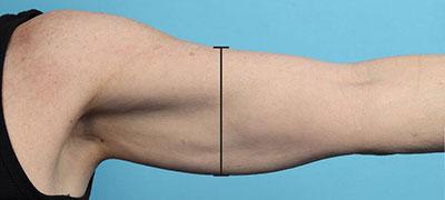TransFORM Body Treatment Before Image