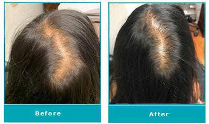Nutrafol® Treatment Effects, image Dermatology
