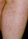 Sclerotherapy Treatment Actually Patient Results - Montclair, NJ