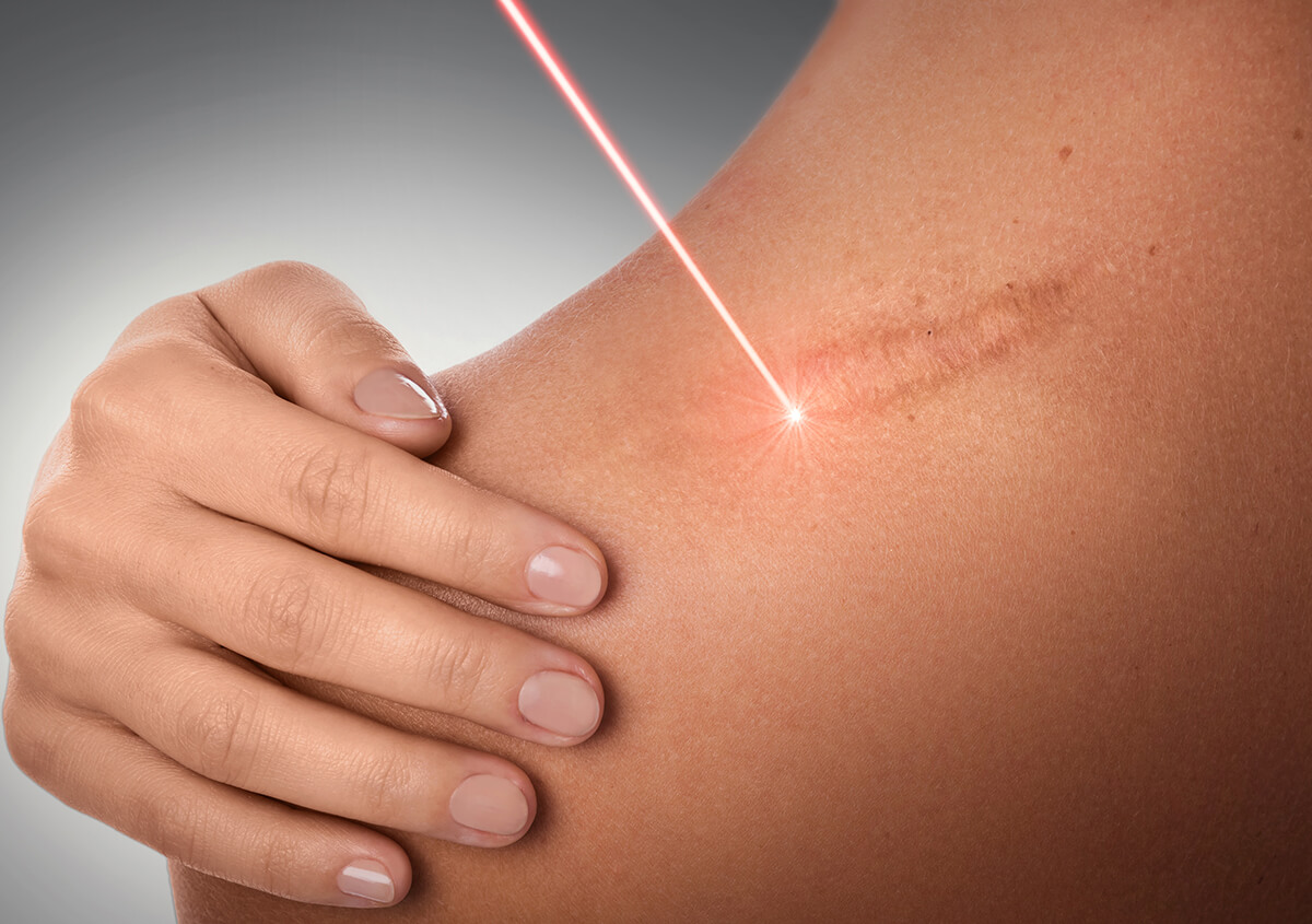 What Are the Benefits of the Fraxel Laser Procedure In Montclair NJ Area
